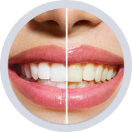 Cosmetic Dentists In Martinsburg WV