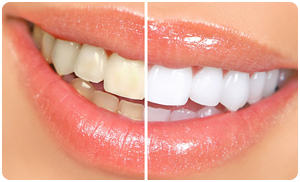 Cosmetic Dentists WV