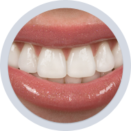 Dental Veneers Dentist In Martinsburg WV