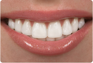 Dental Veneers Martinsburg Dentist