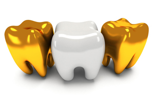 Martinsburg Dentist Dental Crowns
