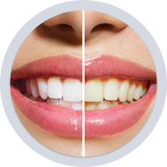 Teeth Whitening Dentist In Martinsburg WV