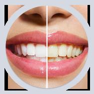 Teeth Whitening Dentist In Martinsburg WV