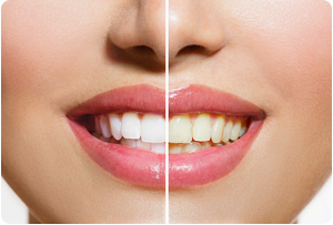 Teeth Whitening Martinsburg Dentist